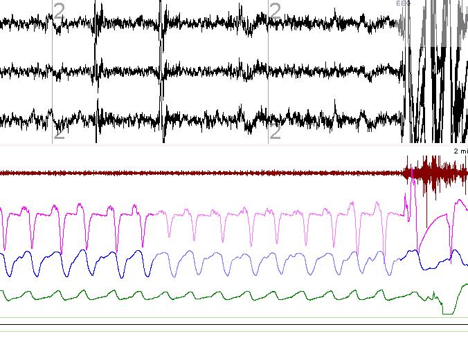 Respiratory event related arousal (RERA)